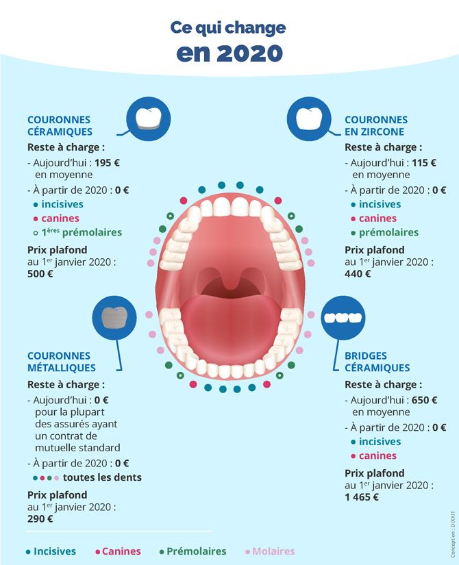 Reste à charge 0 : remboursement des soins dentaires